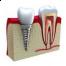 Implantul dentar pentru zambet perfect