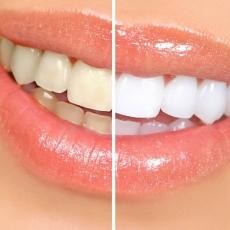 albirea dintilor bucuresti