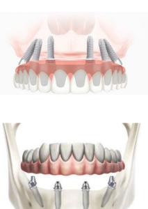 Proteze dentara fixa pe implanturi